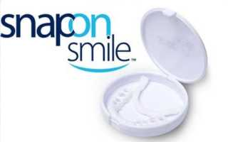 Snap On Smile – съемные виниры